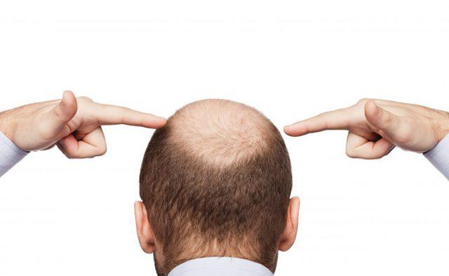 男性後頭部-750×460