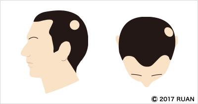 単発性脱毛症