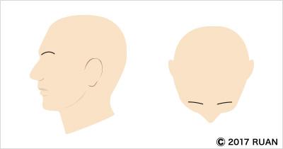 全頭性脱毛症