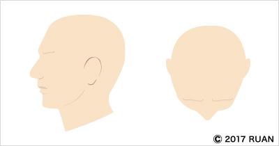 汎発型脱毛症