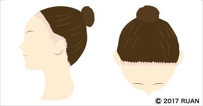 牽引性脱毛症