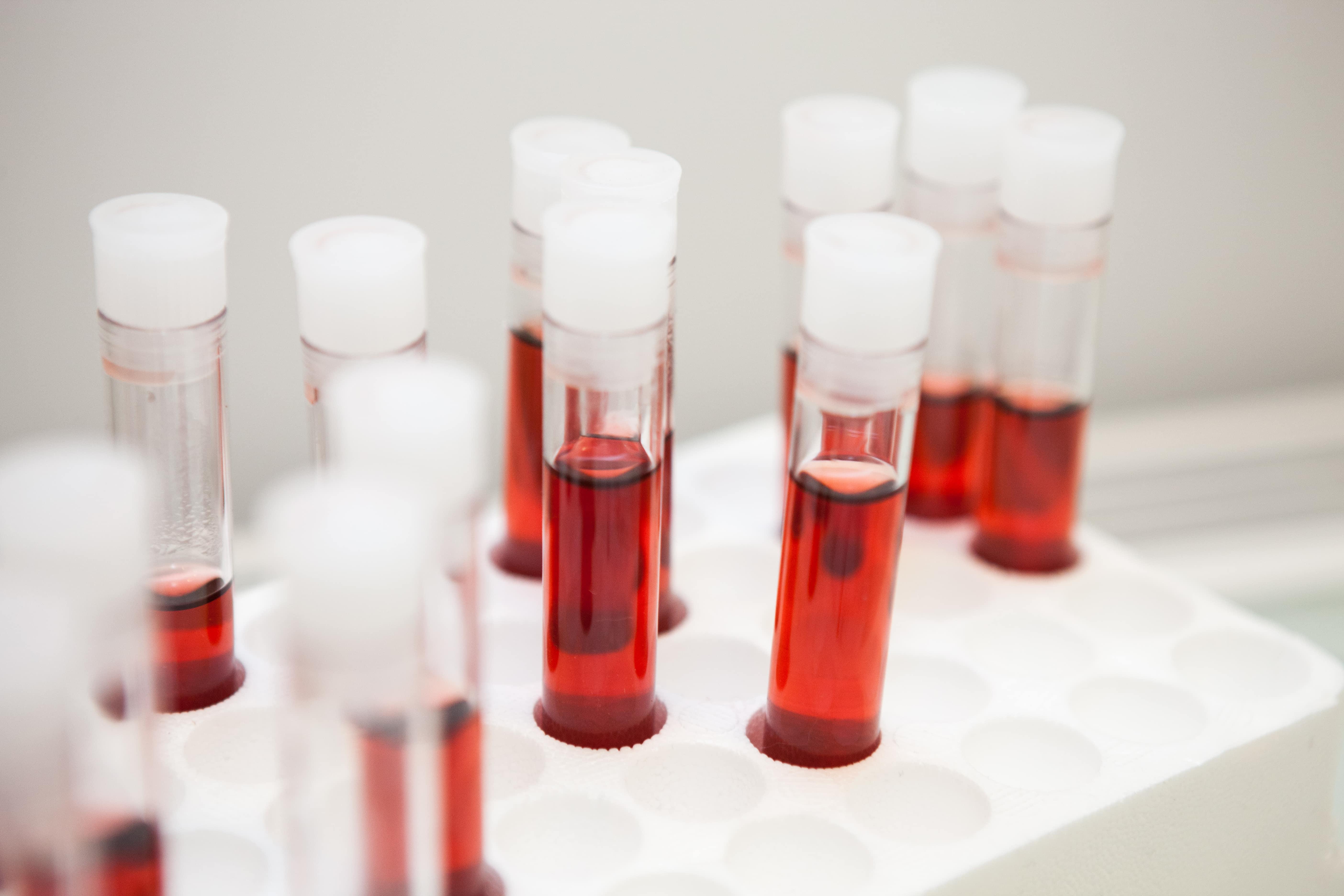 試験管に赤い液体