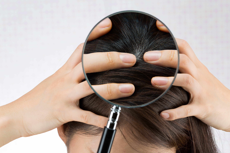 虫眼鏡で見る女性の頭皮