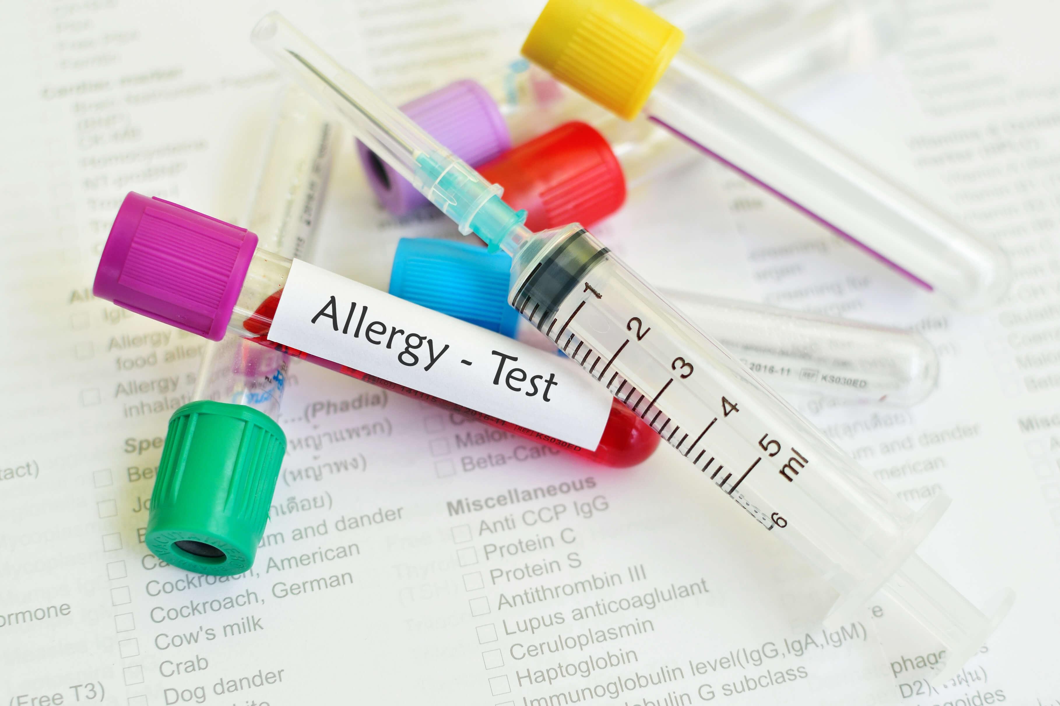 アレルギーテストの為の試験管と注射器