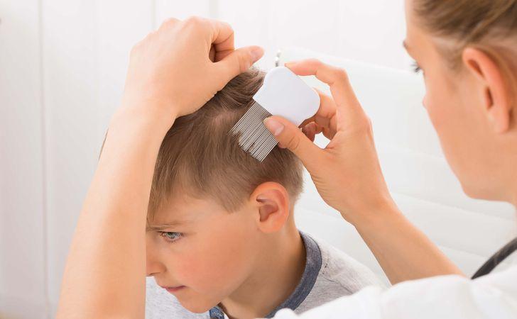 子供の円形脱毛症