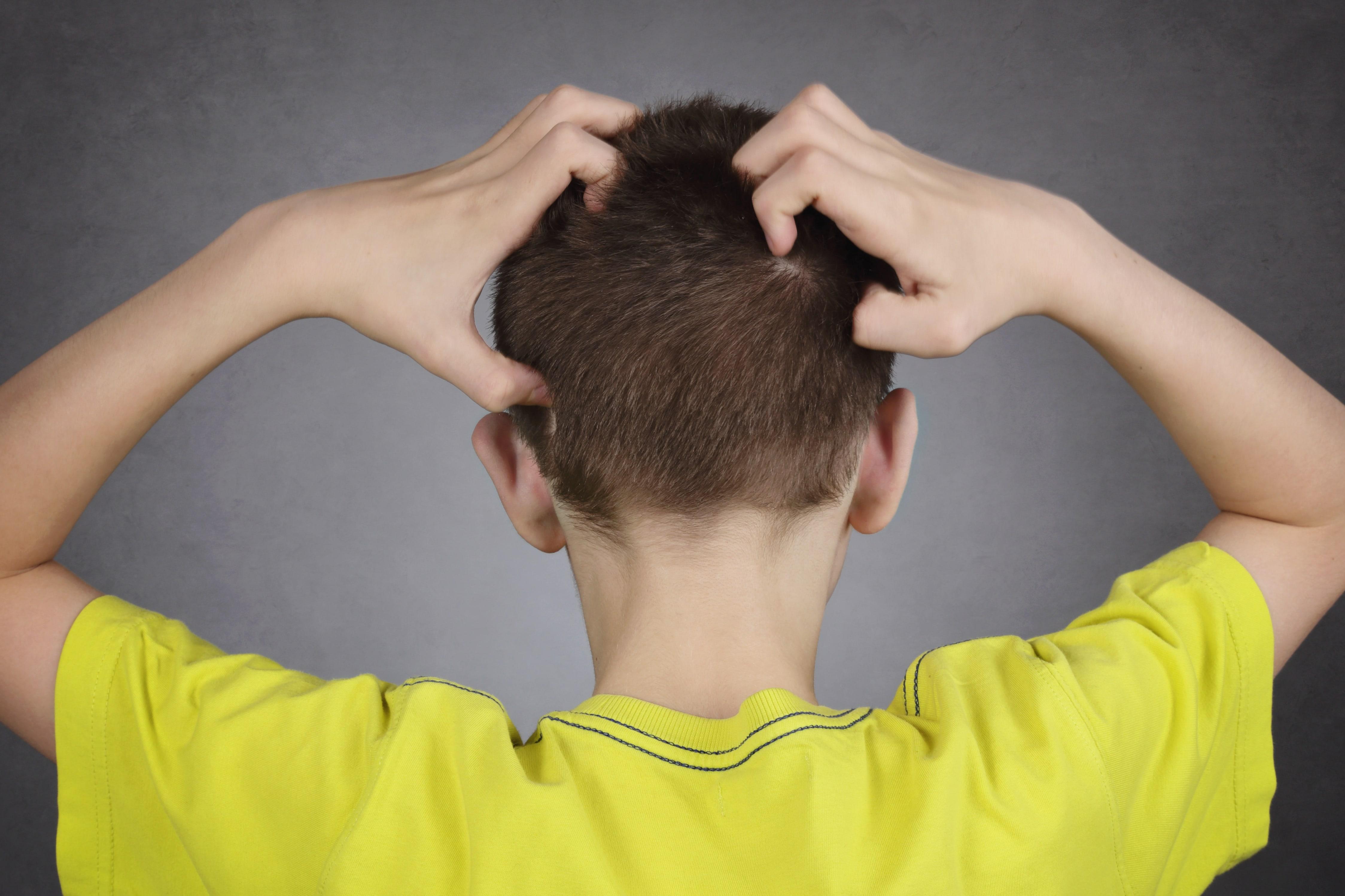 頭を掻く男の子