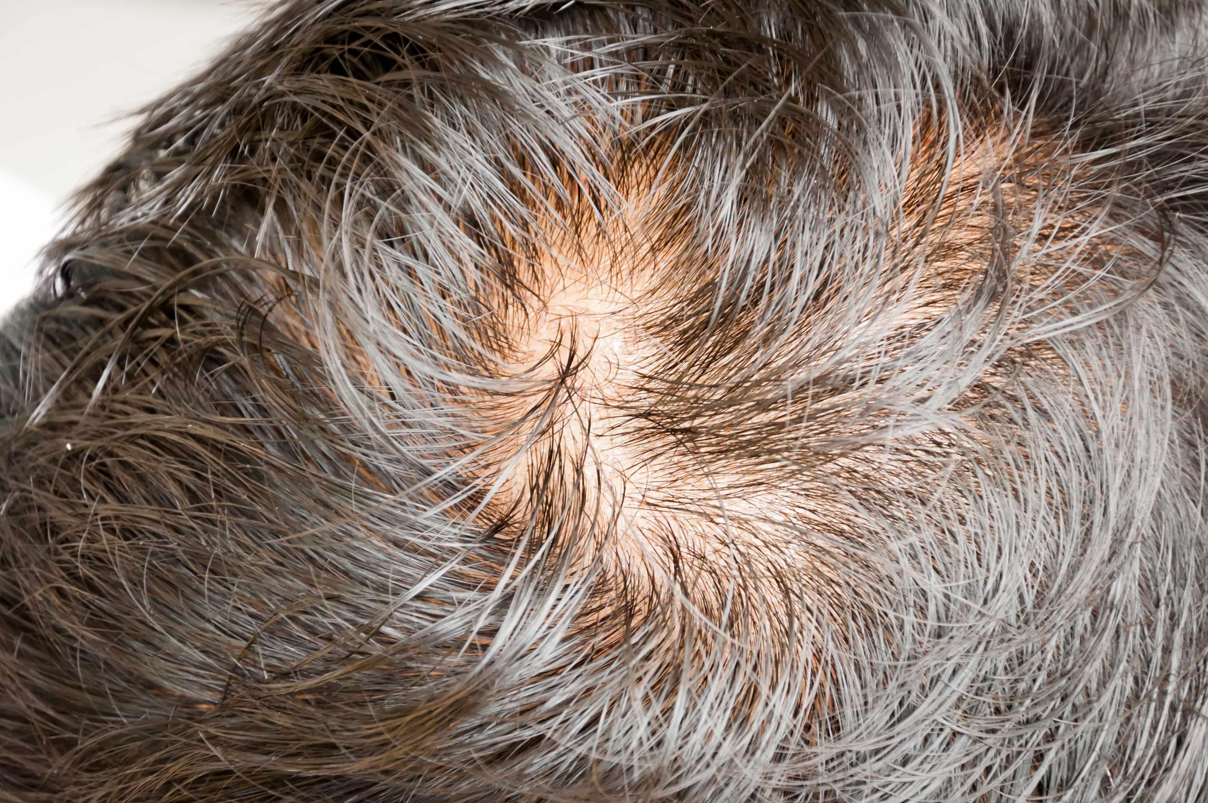 年齢を重ねた頭の髪と頭皮