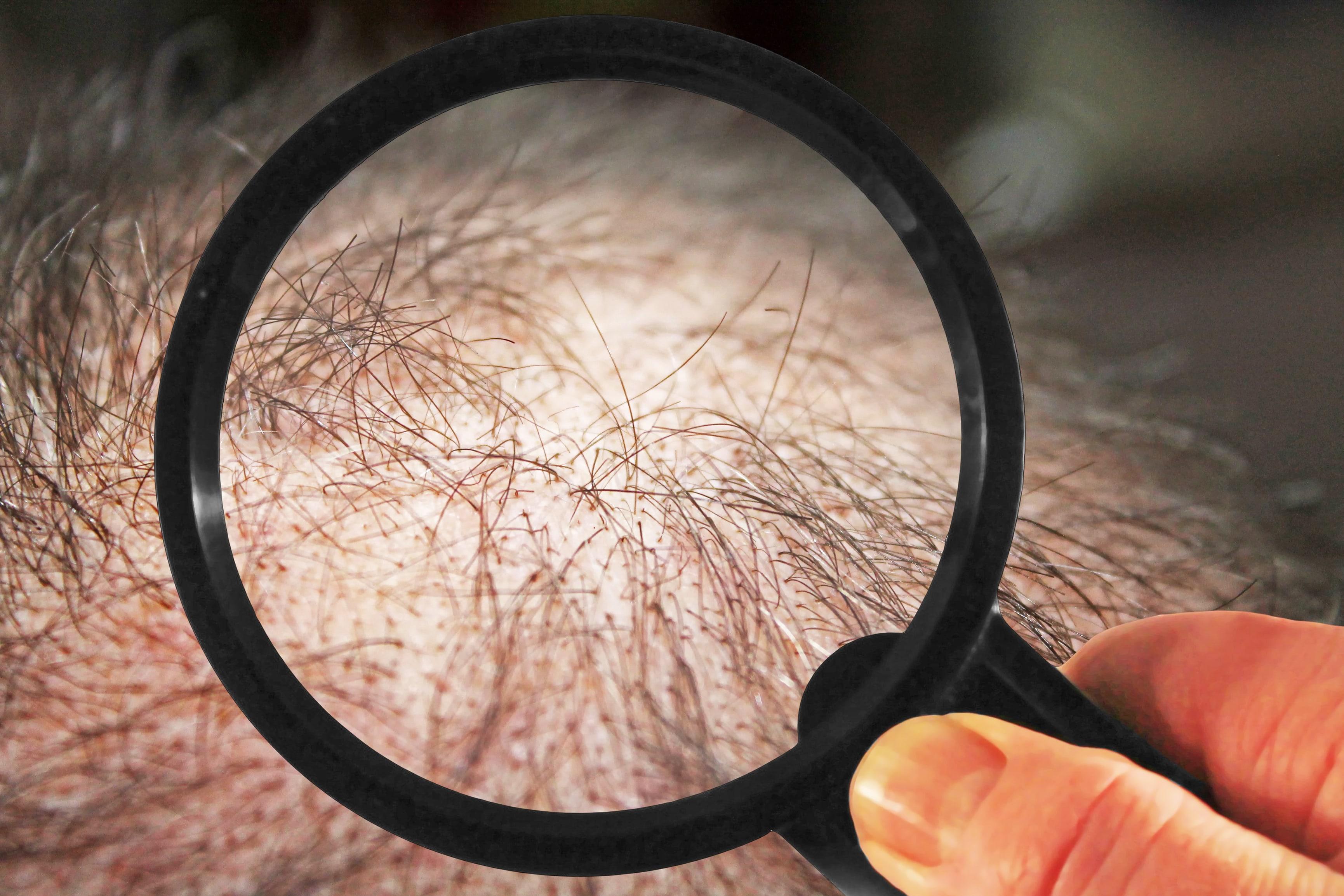 薄毛と虫眼鏡