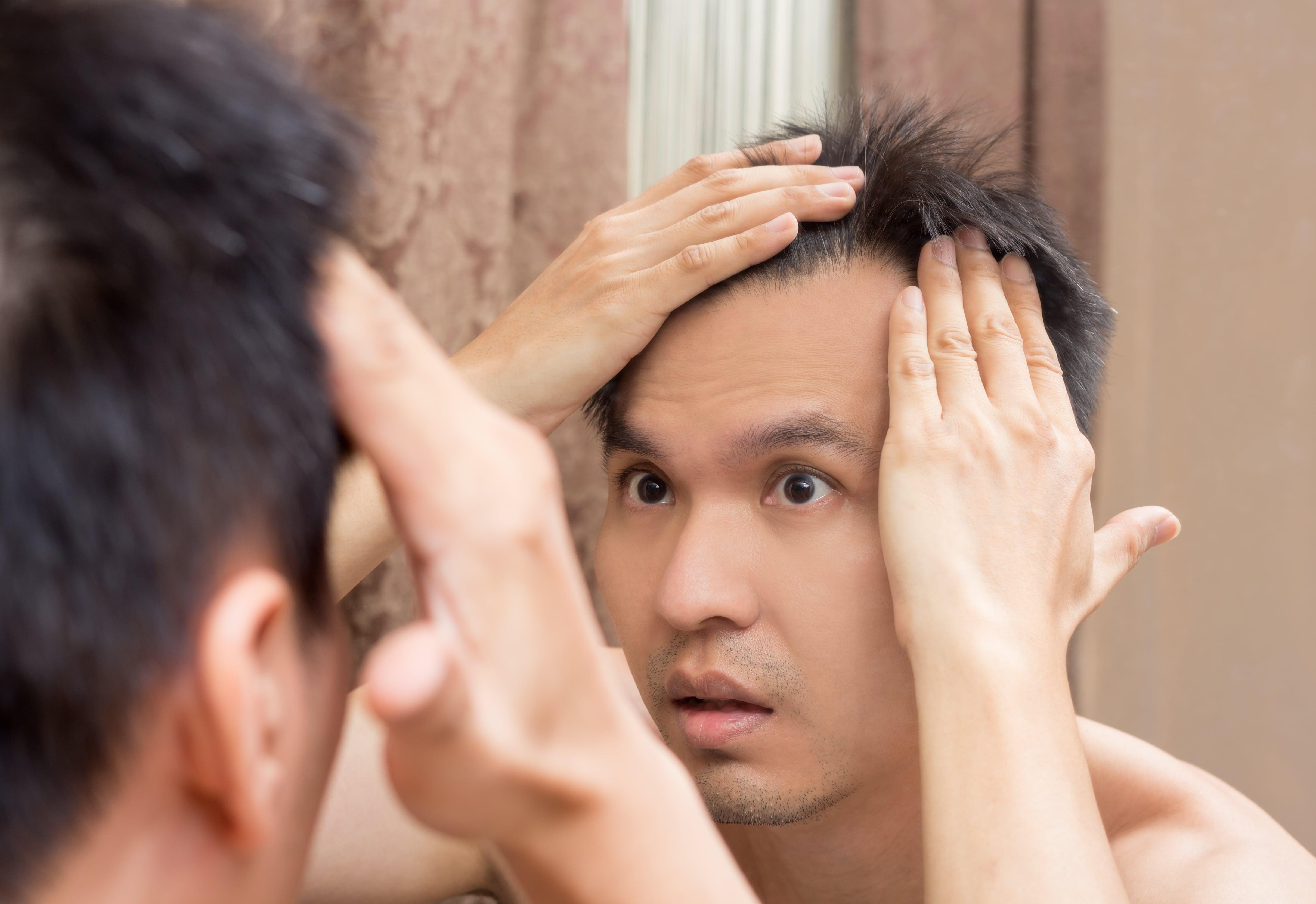 髪の生え際を気にする男性