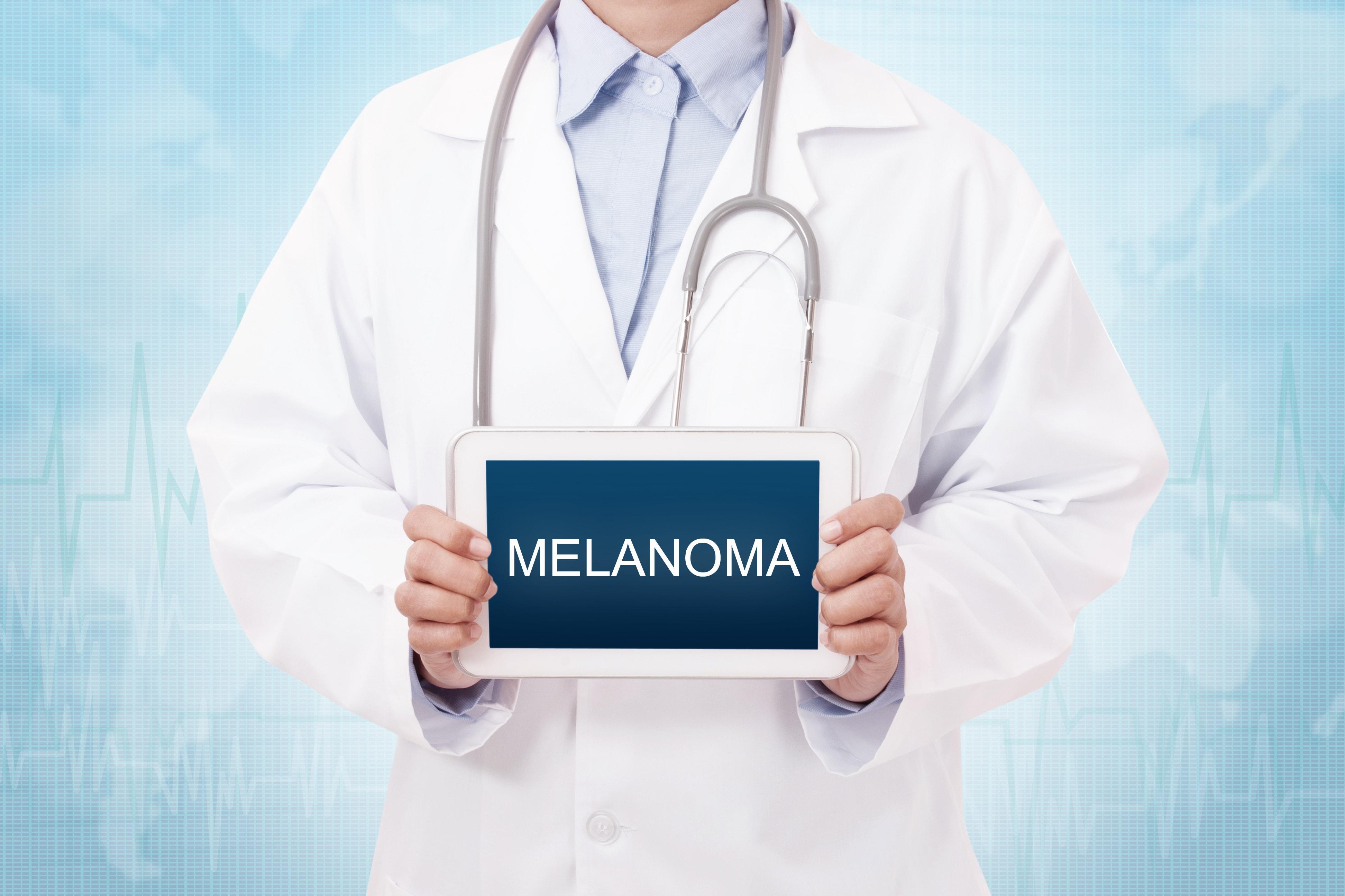 melanomaと書かれたものを持つ医師