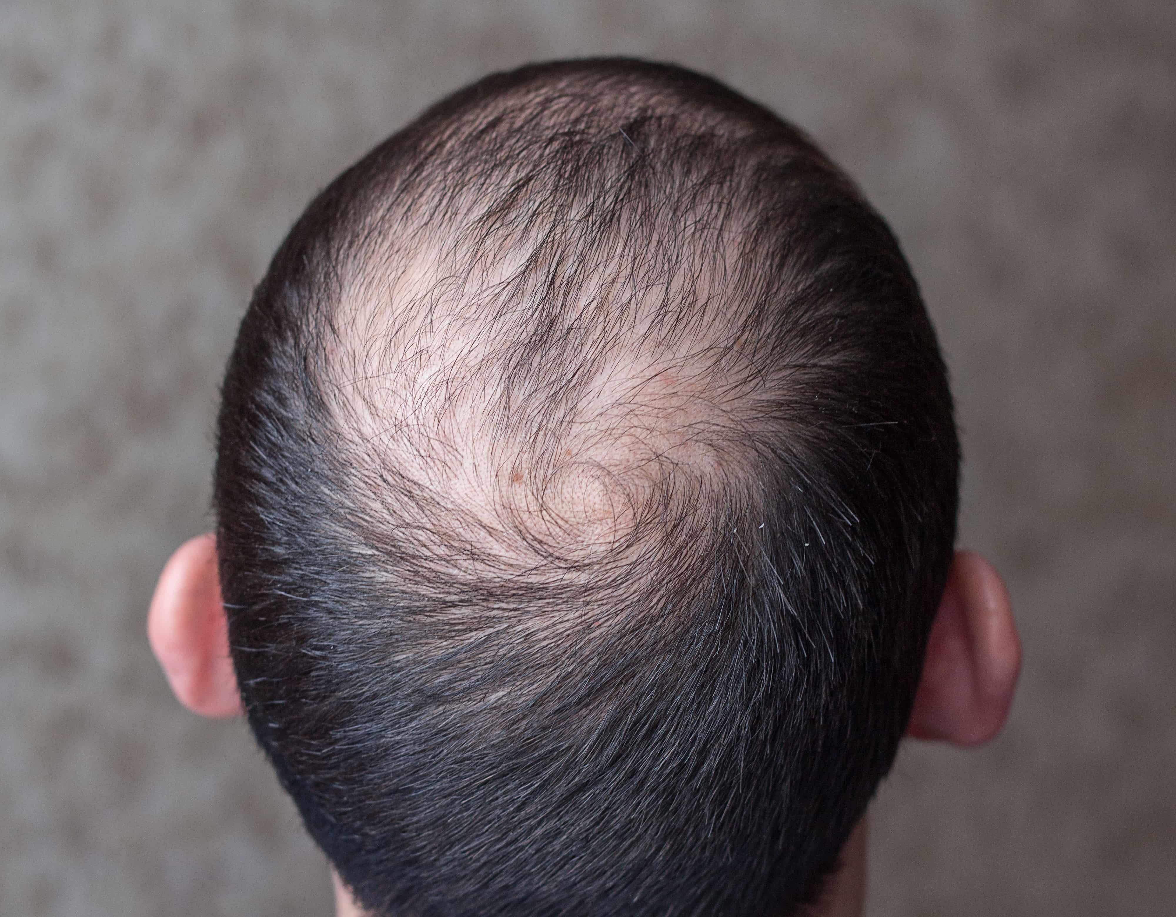 薄毛の男性後頭部