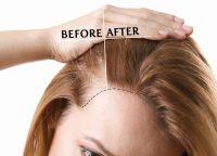 短期間で発毛効果を実感?薄毛治療に効果的な毛髪再生メソセラピーとは