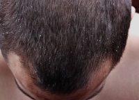抜け毛・薄毛を食い止めるには?フケ対策・改善方法を知って正しいケアを!