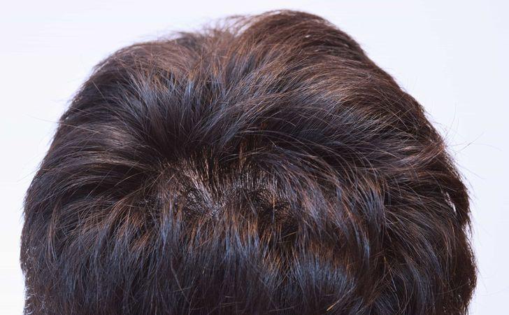 男性後頭部