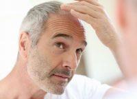 頭皮の乾燥トラブルを予防するには?地肌の潤いを保つ方法