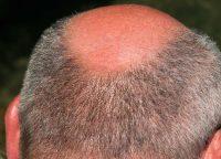 頭皮の日焼けを予防しよう!抜け毛を抑えるケア方法は?