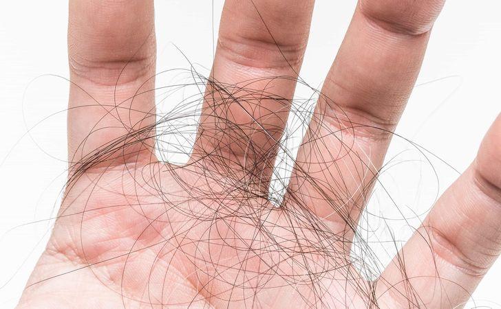 手の平にたくさんの抜け毛