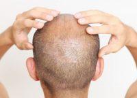 頭皮のにおいの原因と対策は?くさくなるメカニズムを理解しよう