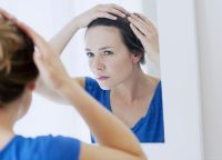 FAGA(女性男性型脱毛症)とは?発症する原因や効果的な治療方法