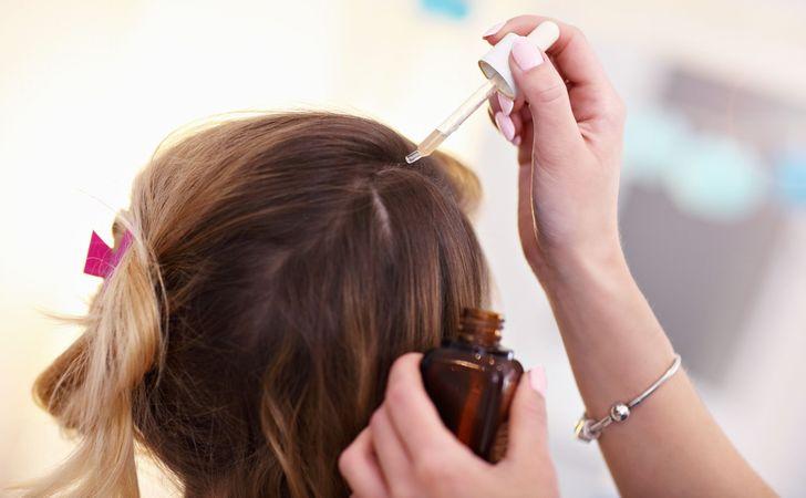 女性の後頭部にスポイトに入ったローションを塗布しようとしてる姿