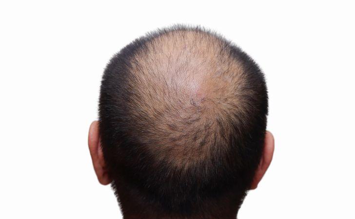 頭頂部が薄くなっている男性の後ろ姿