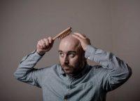 壮年性脱毛症とは?薄毛の進行タイプと原因や治療法を紹介