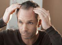 休止期脱毛症にかかる原因は?急性と慢性の違いと対策について