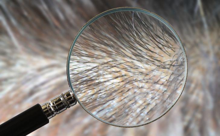 虫眼鏡で毛根の拡大