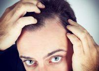 髪の根元にある立毛筋とは?収縮作用と働きについて
