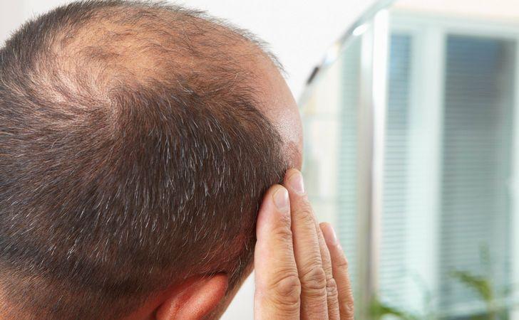 毛母細胞と薄毛の関係は?