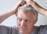頭皮湿疹の原因と種類は?頭を清潔に保って湿疹を予防しよう