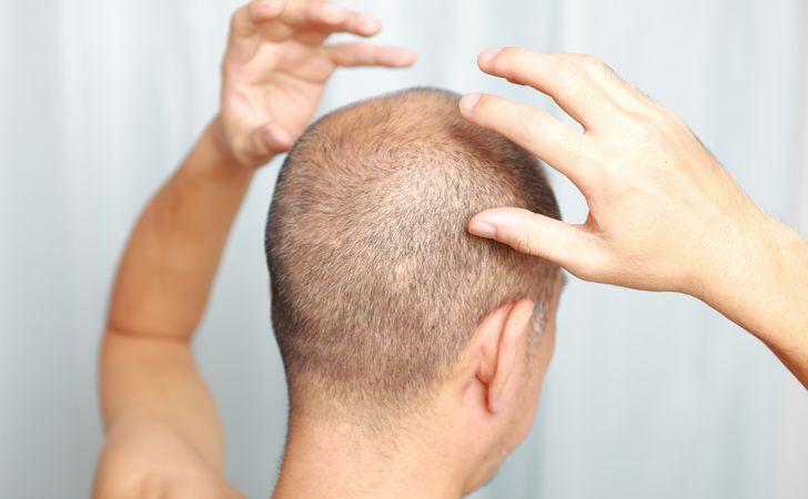 頭皮マッサージも実施して効果アップ