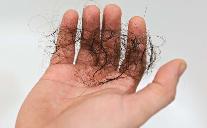 捻転毛の症状