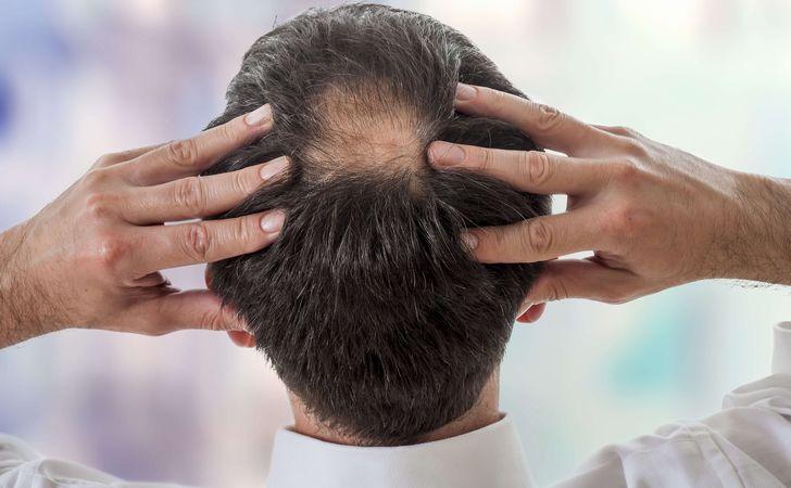 抜け毛の種類