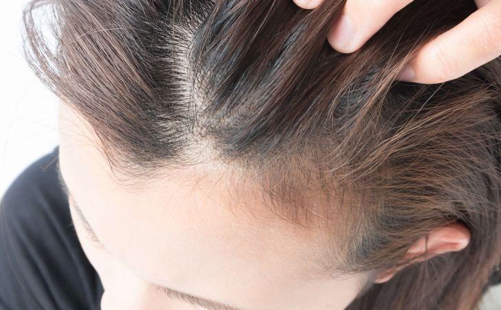 脱毛症が関係している?