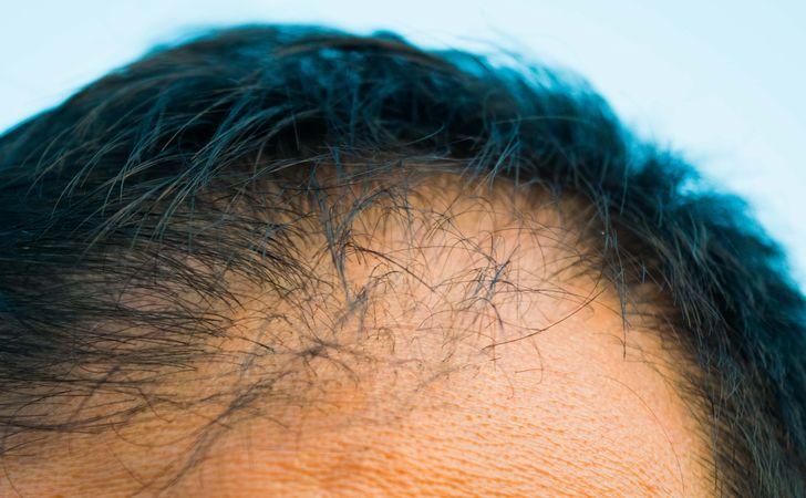 頭皮の角栓が髪に与える悪影響