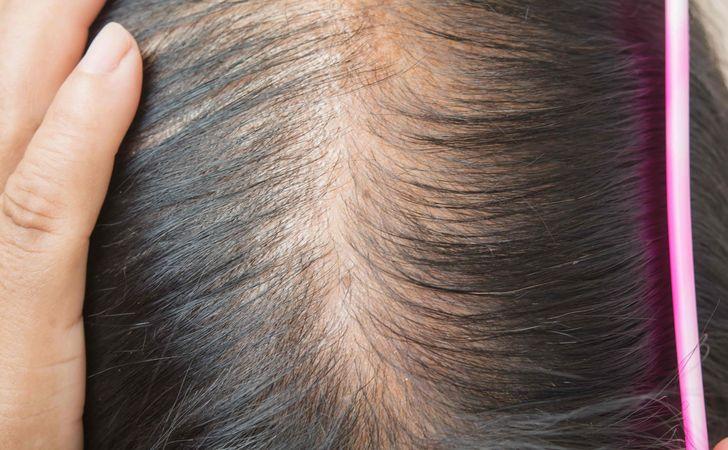 髪を太くする方法