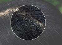 【20代の白髪】若白髪を改善したい!予防方法や治す方法はあるの?