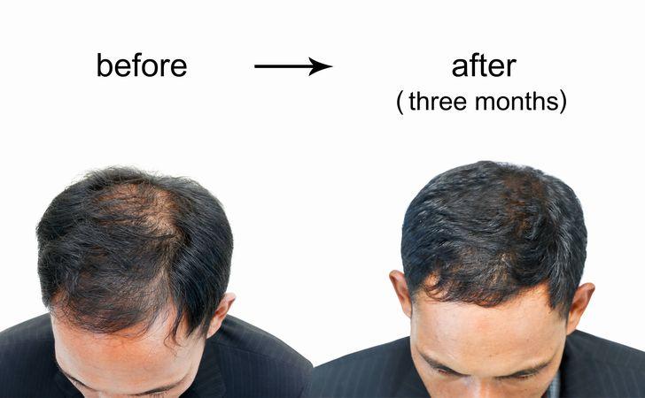 発毛と育毛の違いは?