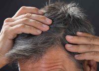 白髪の原因は?白髪予防の食べ物やケア方法について