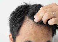 育毛に効果のある食べ物は?育毛効果のある栄養素をご紹介