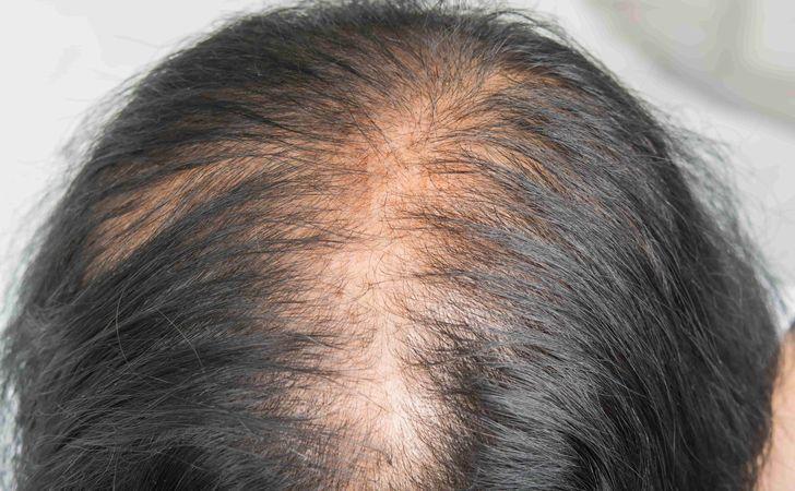 産後の髪の毛のサイクル