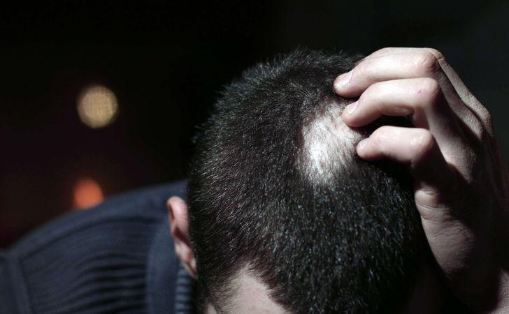 ストレスが原因で考えられる脱毛症の種類