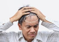 【脱毛症の種類】生え際だけじゃない?薄毛のタイプとなりやすい部位をご紹介