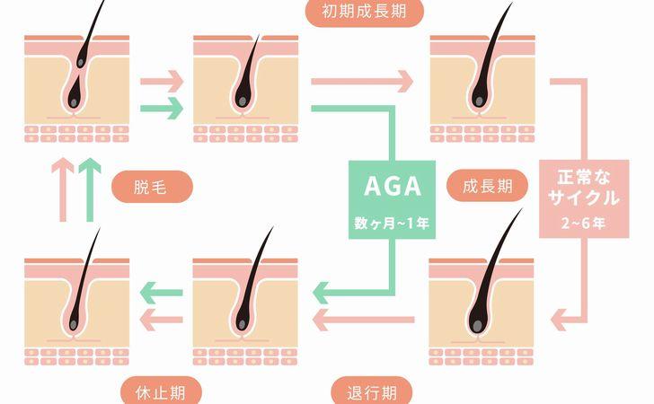AGAではなぜヘアサイクルが乱れるか