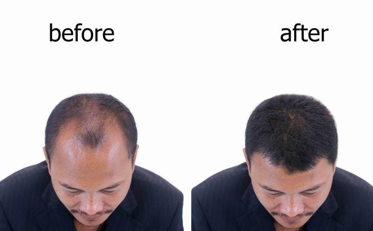 初期脱毛の継続期間は平均1カ月ほど
