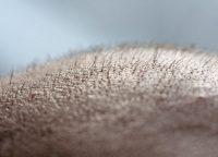 薄毛治療はどこに相談すればいい?皮膚科とAGAクリニックの違いについて