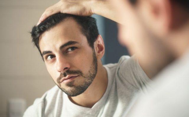 薄毛でもキマる髪型