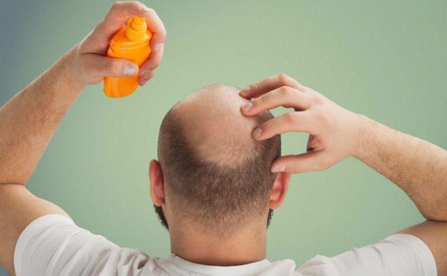 薄毛に効果的な育毛剤