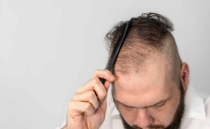 男性型脱毛症(AGA)の場合